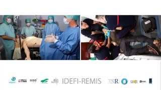 Teaser Idefi Remis