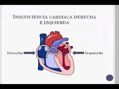 IC sistolica, diastolica, derecha e izquierda