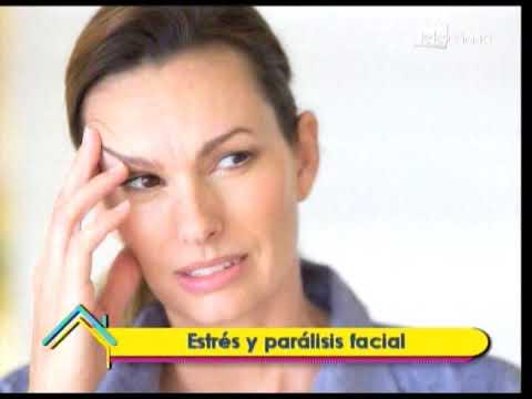 Estrés y parálisis facial