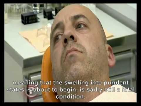 Treatment of Patients with Dental Phobia