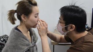 【BrenLui大佬B】台灣醫學美容之旅 最新5分鐘高鼻法