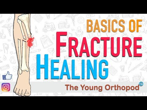 Fracture Healing   ANIMATION   BASICS   The Young Orthopod