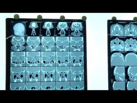 FESS ( Indore ) ( 6-1-18 ) - Dr. Satish Jain - www.skullbase360.in (видео)