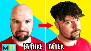 Video Men Try Non-Surgical Hair Replacements & Wigs - Before and After! MP3, 3GP, MP4, WEBM, AVI, FLV November 2018