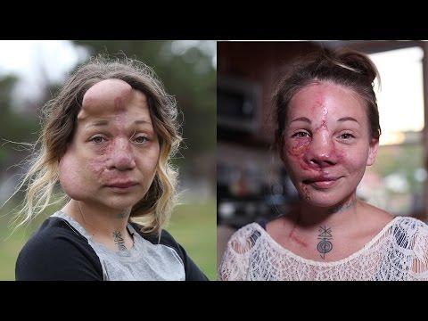 醫生「為了救她的命」只好決定切除掉她的鼻子,結果她現在的模樣讓大家都嘴角上揚!
