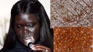 Looking at Dark Skin Under a Microscope || Nyma Tang