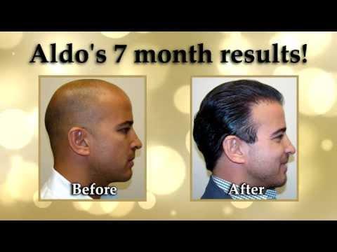Hair Transplant Video 1