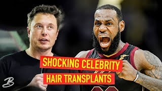 Video 5 Celebrities That Got Hair Transplants - You'd Never Know! MP3, 3GP, MP4, WEBM, AVI, FLV November 2018