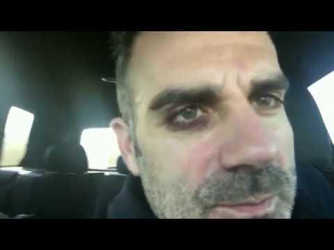 Sorrentino, per i 15 anni di A Castro gli fa un occhio nero