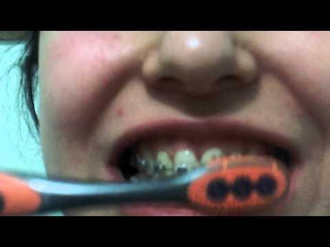 Diş telleri ve diş fırçalama
