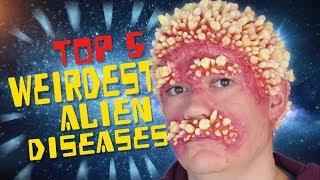 Video Top 5 Weirdest Alien Diseases MP3, 3GP, MP4, WEBM, AVI, FLV Desember 2018