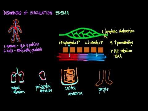 Disorders of Circulation: Edema
