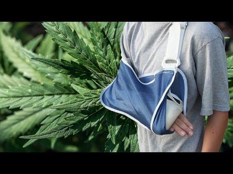 Marijuana Can Heal Broken Bones?