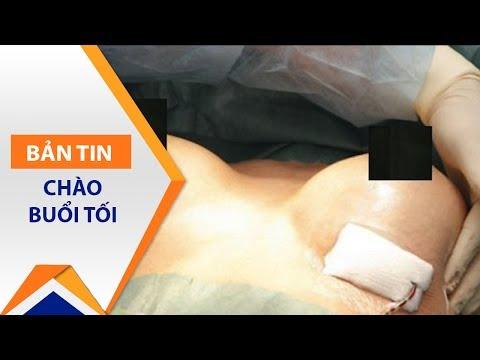 Kinh hoàng hoại tử ngực vì phẫu thuật thẩm mỹ | VTC1 - Thời lượng: 2 phút, 8 giây.