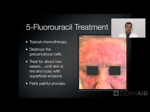 Actinic Keratosis Treatment