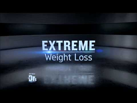 Wednesday 04/01: Extreme Weight Loss Surprise; Anti-Aging Chocolate?; Diet-Friendly Desserts – Promo