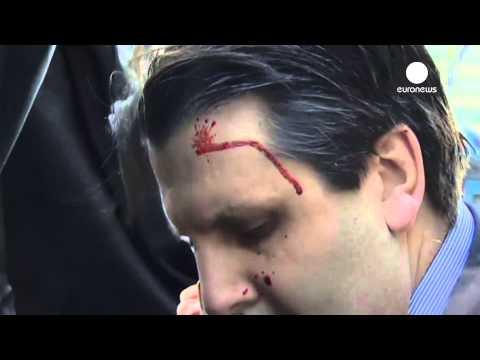 Shocking mobile footage: US Ambassador face slashed in South Korea