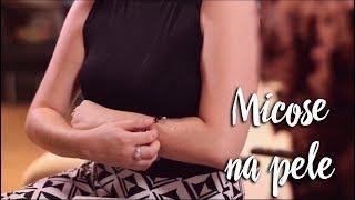 Momento Clinic Farma - Micose na pele