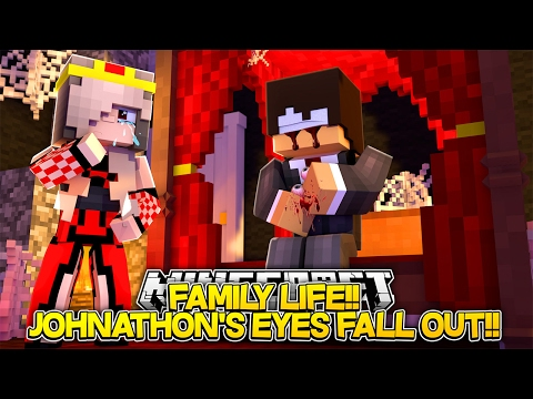 Minecraft FAMILY LIFE: EVIL JOHNATHON'S POISONED EYES FALL OUT!! Little Donny & Baby Leah Roleplay.