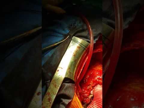 Aort disseksiyonu tip 1