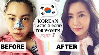 Video MY PLASTIC SURGERY IN KOREA PART 2 - RECOVERY & RESULTS - Docfinderkorea 성형 후기 2부 닥파인더코리아 MP3, 3GP, MP4, WEBM, AVI, FLV Agustus 2019