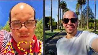 Video What It's Like Going Bald at 18 MP3, 3GP, MP4, WEBM, AVI, FLV Maret 2019