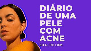 STEAL THE LOOK apresenta: pele com acne