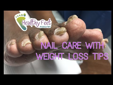 Diabetic diet - Diabetic Nail Trimming with some Diet Tips