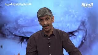 وإذا مرضت فهو يشفين | علاج الأمراض الجلدية الغريبة مع الشيخ بلحمر أبو مسلم