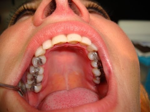 dental fetish - Supermodel at the Dentist getting her cavities filled with amalgam, full treatment video, dental clinical case GET the complete footage in HQ on http://www.b...