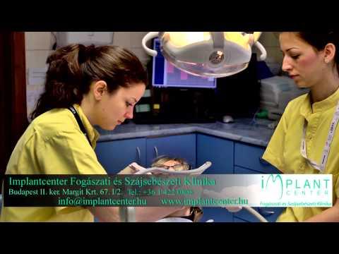 Minden, ami a fogászatban elérhető - Implantcenter Fogászati és Szájsebészeti Klinika