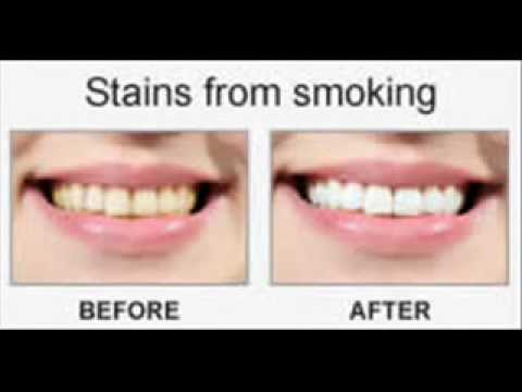 Beverly Hills Smile teeth whitening system before and after pictures