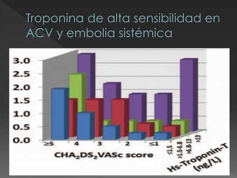 Crítica de la estratificación del riesgo de ACV en fibrilación auricular. Dr. Diego Martín Rodríguez. Residencia de Cardiología. Hospital C. Argerich. Buenos Aires