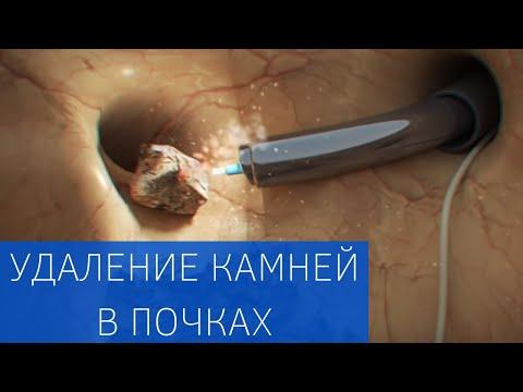 Мочекаменная болезнь: удаление камней и лечение почечной колики