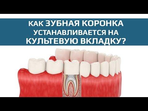 Зубные коронки: зубная коронка на разборной культевой вкладке