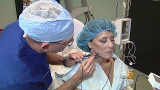 ThermiTight as Thermal Therapy For Wrinkles featured in CBS HealthWatch