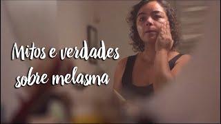 Mitos e verdades sobre melasma