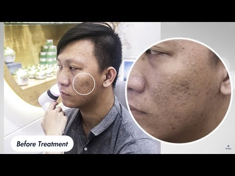 Before & After Blackhead Removal 55min by Gà Spa - Feeling so satisfied!!