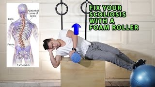Fix Your Scoliosis with a Foam Roller (Scroth's Method)