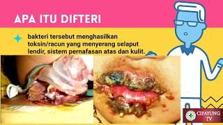 Download Video Apa Itu Penyakit Difteri...? MP3 3GP MP4