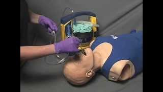 Skills - Pharyngeal Suctioning (Flexible Tip)
