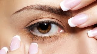 Глаукома. Лечение и профилактика