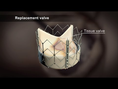 how to repair pyloric valve