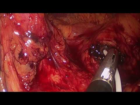 Pancreatic Insulinoma Laparoscopic Resection