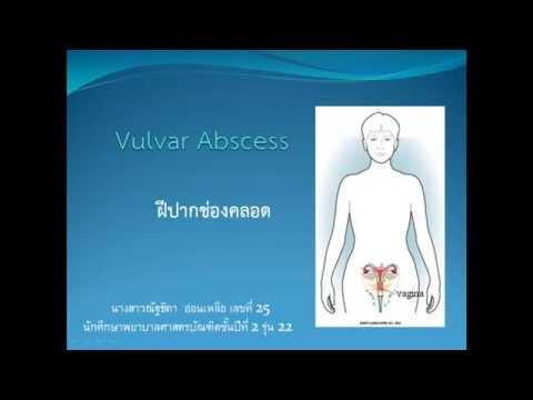 Vulvar abscess(ฝีปากช่องคลอด)