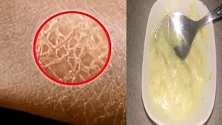 Dry Skin. Home Recipe. Natural Skin care. Beauty Tips/Remedy For Dry Skin/வறண்ட சருமத்திற்குத்தீர்வு