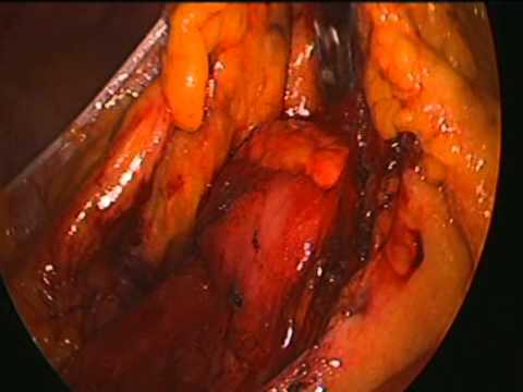 laparoscopic right hemicolectomy