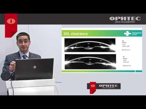 Artiflex PIOL: Biometric criteria