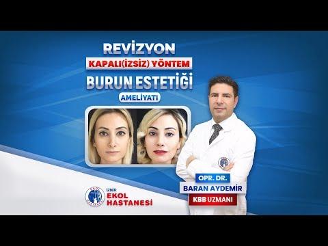 Revizyon - Kapalı Burun Estetiği - Opr. Dr. Baran Aydemir - İzmir Ekol Hastanesi