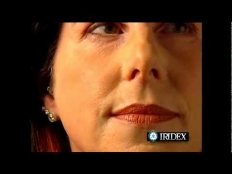 comment soigner erythrose